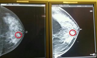 존 2D진단장비로 찍은 영상(왼쪽)과 새로 개발된 3D진단장비로 유방암 병변을 찍은 사진. 그림에서와 같이 흐릿한 2D영상에 비해 3D영상에서 병변이 훨씬 뚜렷하고 선명하게 보인다. - 한국전기연구원 제공
